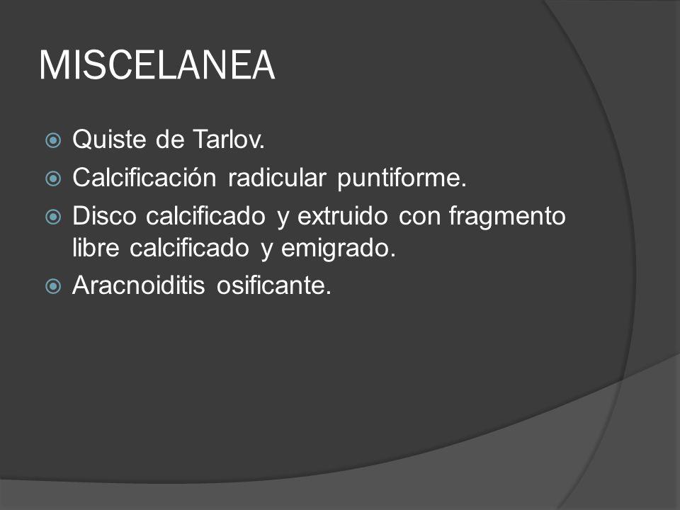 MISCELANEA Quiste de Tarlov. Calcificación radicular puntiforme. Disco calcificado y extruido con fragmento libre calcificado y emigrado. Aracnoiditis