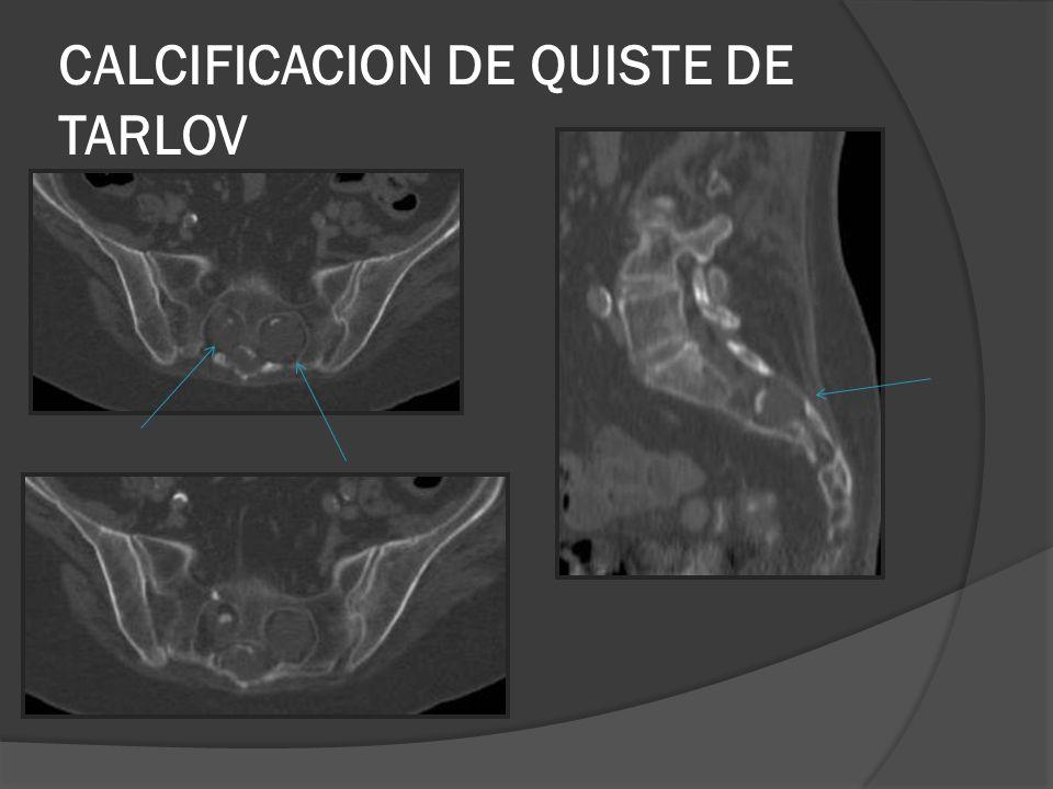 CALCIFICACION DE QUISTE DE TARLOV