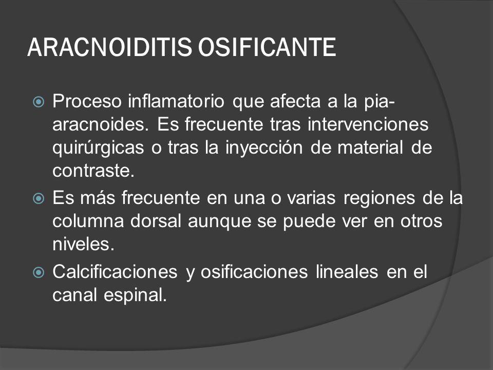 ARACNOIDITIS OSIFICANTE Proceso inflamatorio que afecta a la pia- aracnoides. Es frecuente tras intervenciones quirúrgicas o tras la inyección de mate