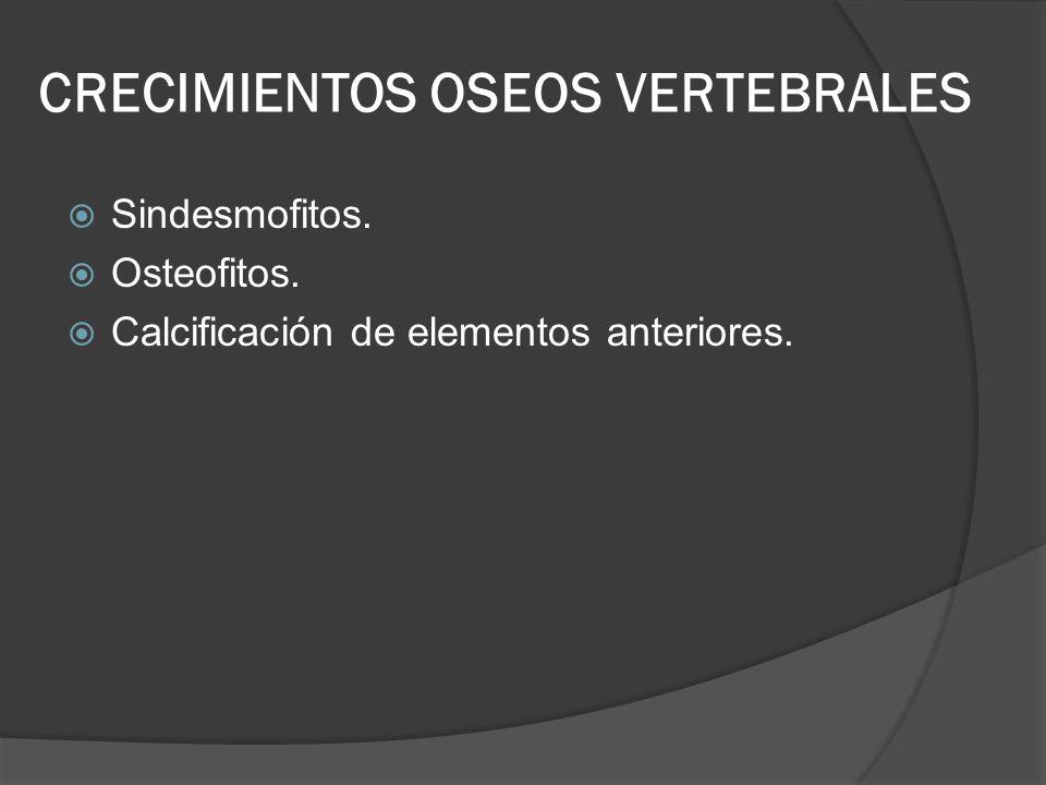 CRECIMIENTOS OSEOS VERTEBRALES Sindesmofitos. Osteofitos. Calcificación de elementos anteriores.