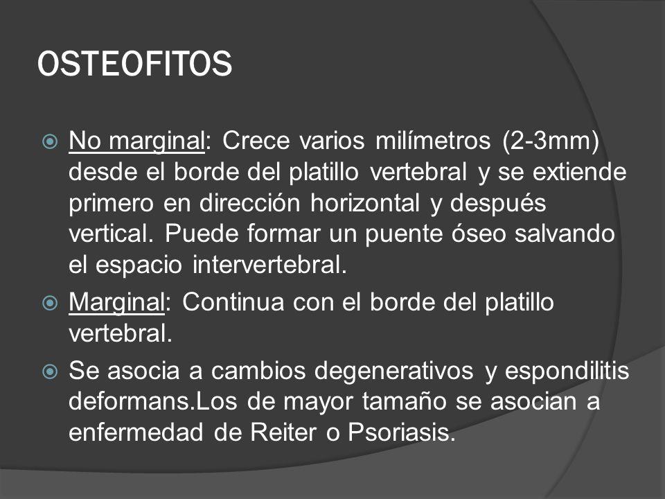 OSTEOFITOS No marginal: Crece varios milímetros (2-3mm) desde el borde del platillo vertebral y se extiende primero en dirección horizontal y después