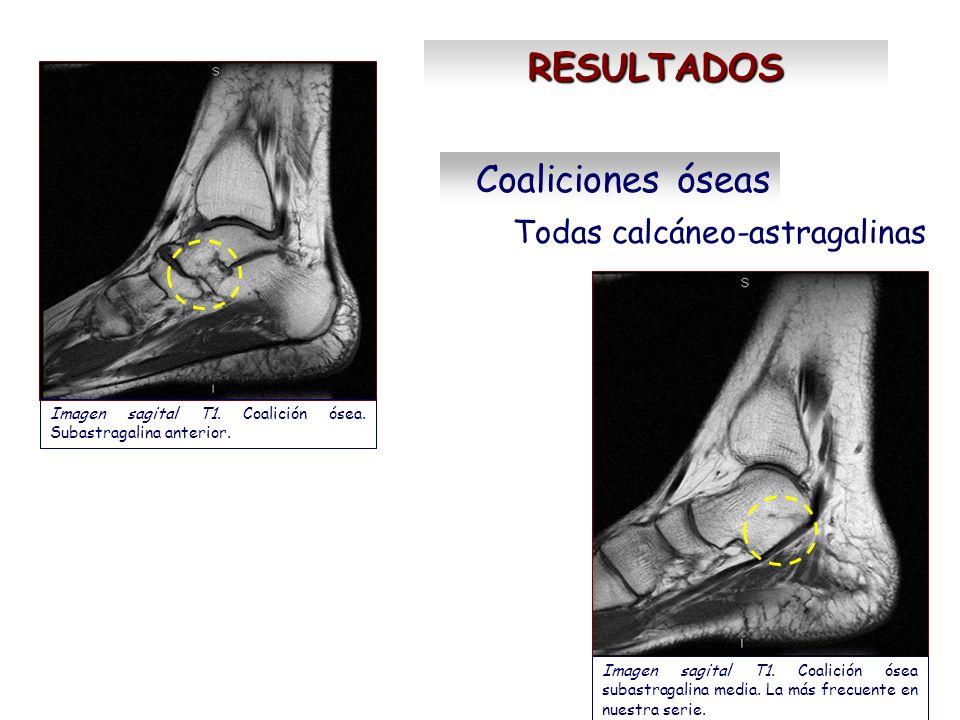 RESULTADOS Coaliciones óseas Todas calcáneo-astragalinas Imagen sagital T1. Coalición ósea. Subastragalina anterior. Imagen sagital T1. Coalición ósea