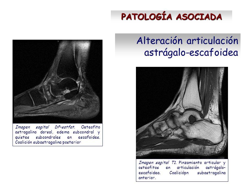 Alteración articulación astrágalo-escafoidea PATOLOGÍA ASOCIADA Imagen sagital T1. Pinzamiento articular y osteofitos en articulación astrágalo- escaf