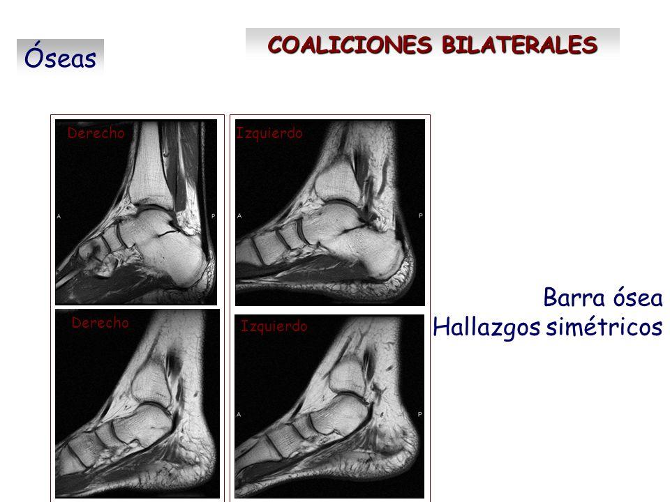 COALICIONES BILATERALES Óseas Barra ósea Hallazgos simétricos DerechoIzquierdo Derecho Izquierdo