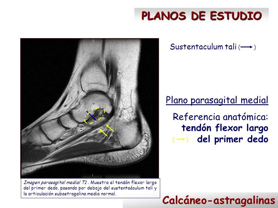 Calcáneo-astragalinas PLANOS DE ESTUDIO Sustentaculum tali Plano parasagital medial Referencia anatómica: tendón flexor largo del primer dedo Imagen p