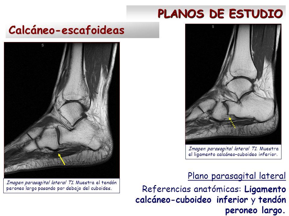 PLANOS DE ESTUDIO Plano parasagital lateral Referencias anatómicas: Ligamento calcáneo-cuboideo inferior y tendón peroneo largo. Calcáneo-escafoideas