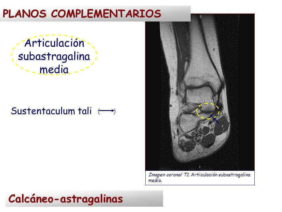 Articulación subastragalina media Sustentaculum tali ( ) Imagen coronal T1. Articulación subastragalina media. Calcáneo-astragalinas PLANOS COMPLEMENT