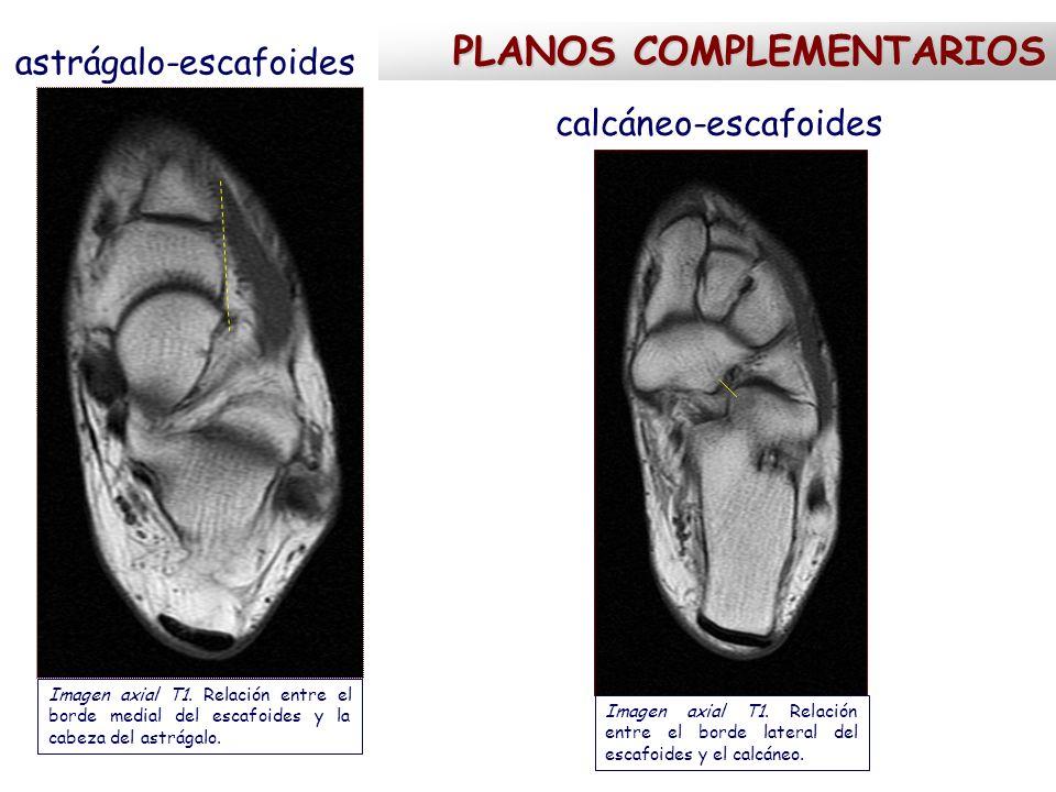 astrágalo-escafoides calcáneo-escafoides PLANOS COMPLEMENTARIOS Imagen axial T1. Relación entre el borde medial del escafoides y la cabeza del astrága