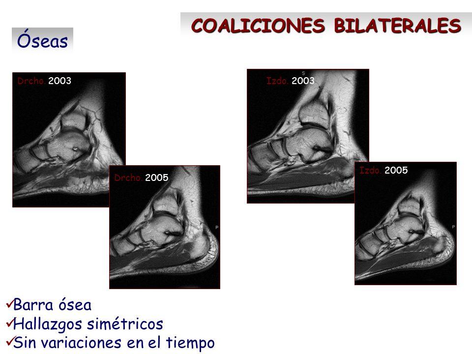 Drcho. 2003Izdo. 2003 Drcho. 2005 Izdo. 2005 COALICIONES BILATERALES Óseas Barra ósea Hallazgos simétricos Sin variaciones en el tiempo