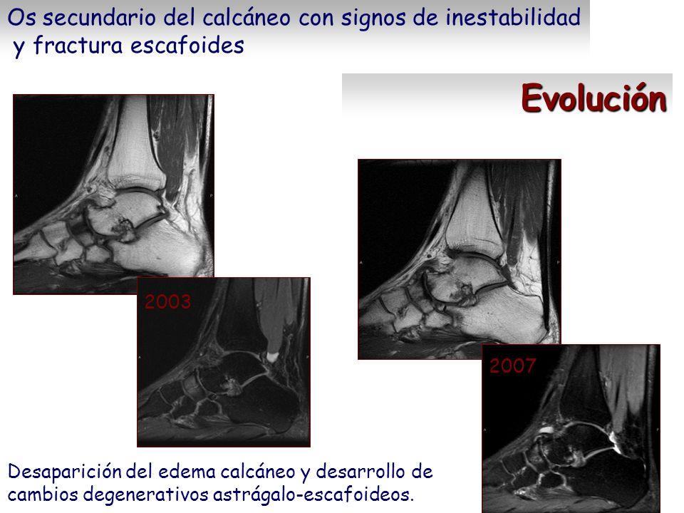 Evolución Os secundario del calcáneo con signos de inestabilidad y fractura escafoides 2003 2007 Desaparición del edema calcáneo y desarrollo de cambi