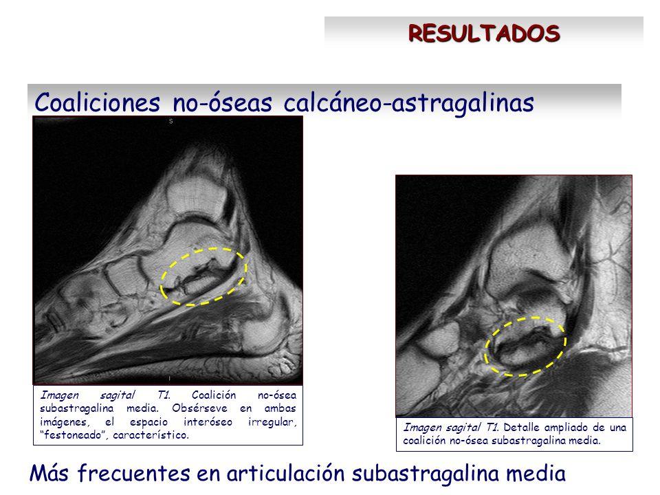 RESULTADOS Coaliciones no-óseas calcáneo-astragalinas Más frecuentes en articulación subastragalina media Imagen sagital T1. Coalición no-ósea subastr