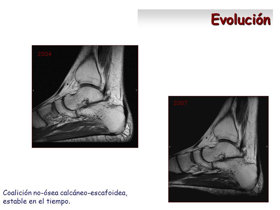 2004 2007 Evolución Coalición no-ósea calcáneo-escafoidea, estable en el tiempo.