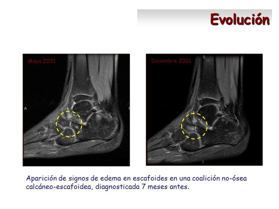 Diciembre 2001 Mayo 2001 Evolución Aparición de signos de edema en escafoides en una coalición no-ósea calcáneo-escafoidea, diagnosticada 7 meses ante