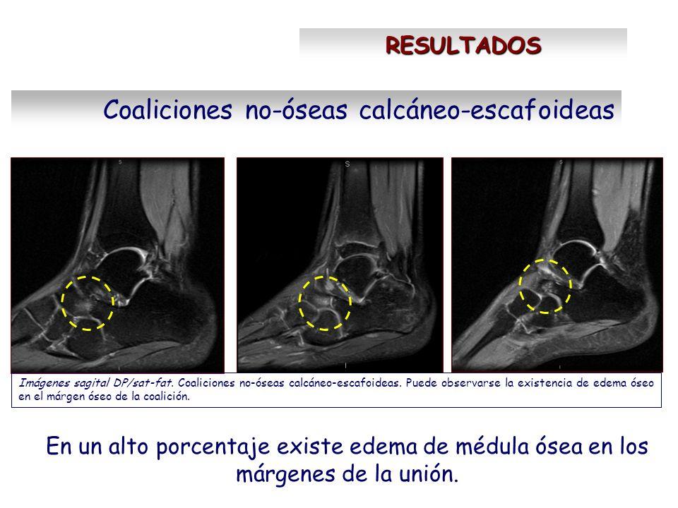 RESULTADOS Coaliciones no-óseas calcáneo-escafoideas En un alto porcentaje existe edema de médula ósea en los márgenes de la unión. Imágenes sagital D