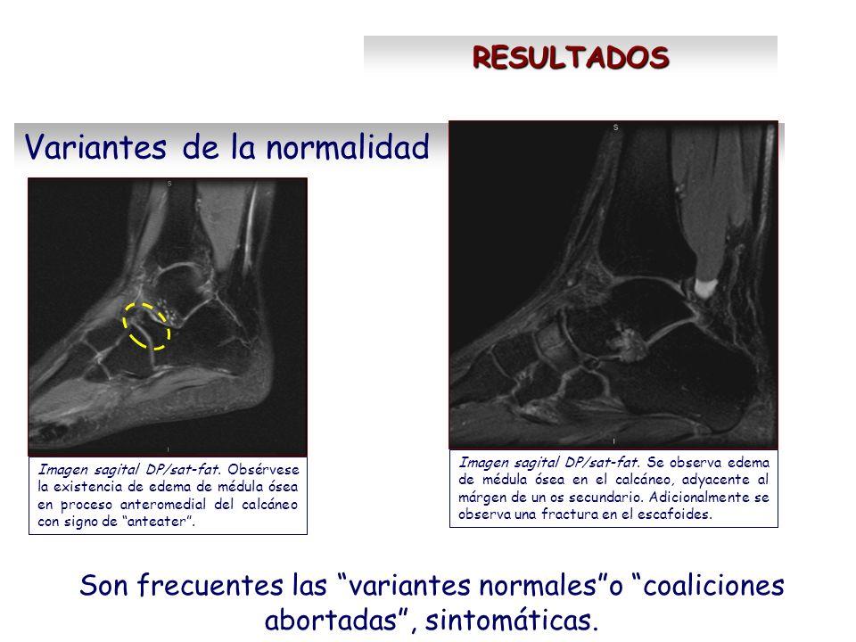 RESULTADOS Son frecuentes las variantes normaleso coaliciones abortadas, sintomáticas. Variantes de la normalidad Imagen sagital DP/sat-fat. Obsérvese