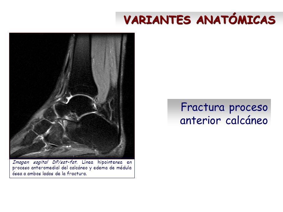 Fractura proceso anterior calcáneo Imagen sagital DP/sat-fat. Línea hipointensa en proceso anteromedial del calcáneo y edema de médula ósea a ambos la