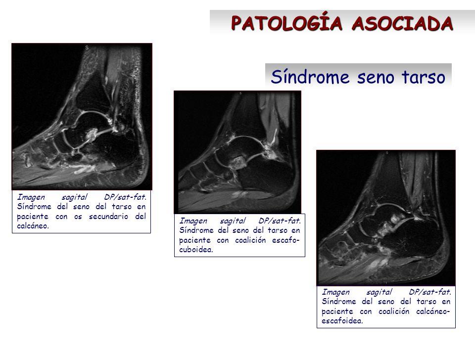 Síndrome seno tarso PATOLOGÍA ASOCIADA Imagen sagital DP/sat-fat. Síndrome del seno del tarso en paciente con os secundario del calcáneo. Imagen sagit