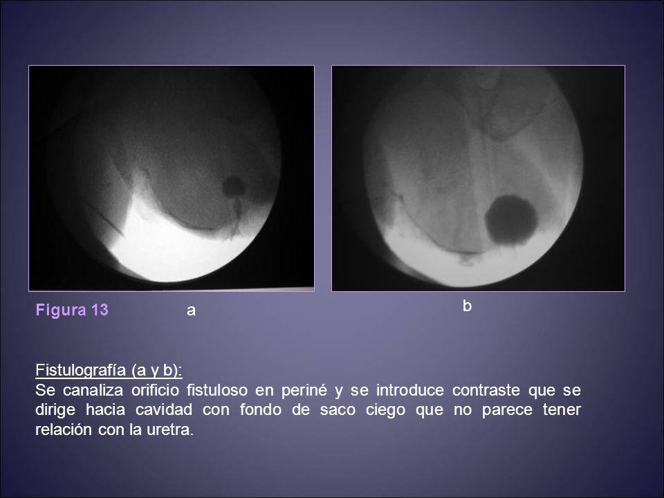 Figura 13 Fistulografía (a y b): Se canaliza orificio fistuloso en periné y se introduce contraste que se dirige hacia cavidad con fondo de saco ciego que no parece tener relación con la uretra.