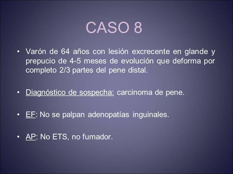 CASO 8 Varón de 64 años con lesión excrecente en glande y prepucio de 4-5 meses de evolución que deforma por completo 2/3 partes del pene distal.