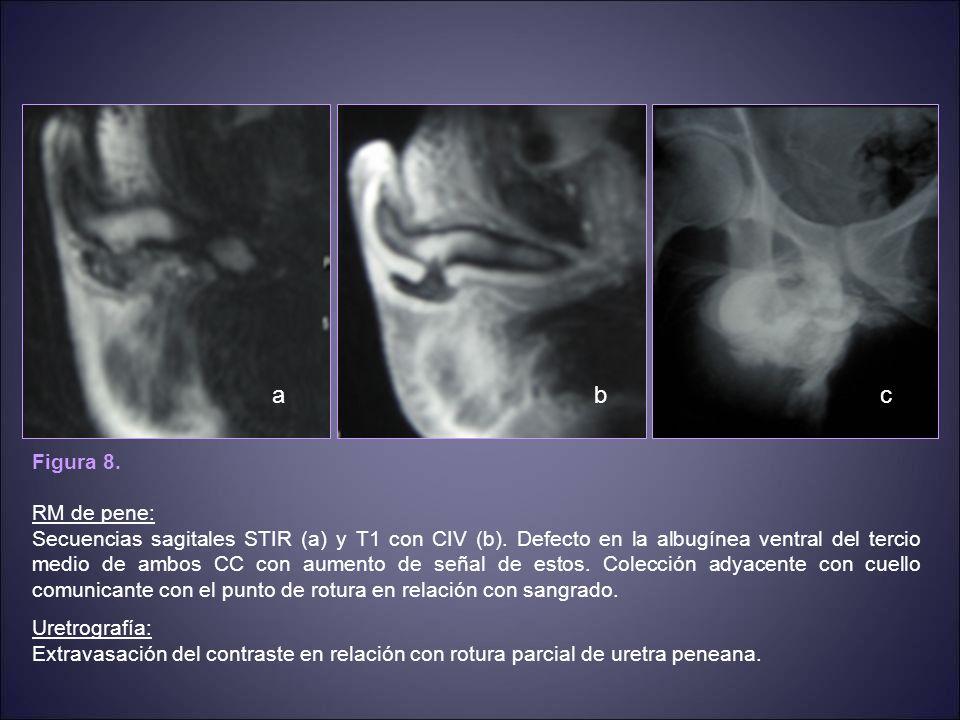 CASO 5 Paciente de 34 años que desde hace 1 mes presenta dolor en región escroto-perineal sin ningún otro síntoma acompañante.