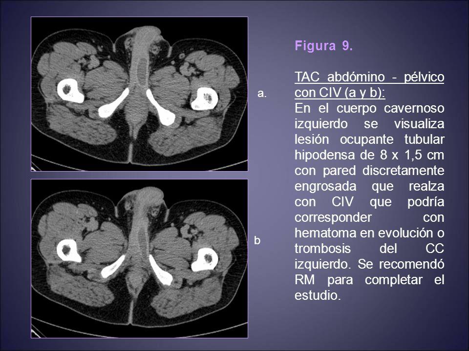 Figura 16.TAC abdómino - pélvico con CIV (a y b): Estudio de extensión del carcinoma de pene.