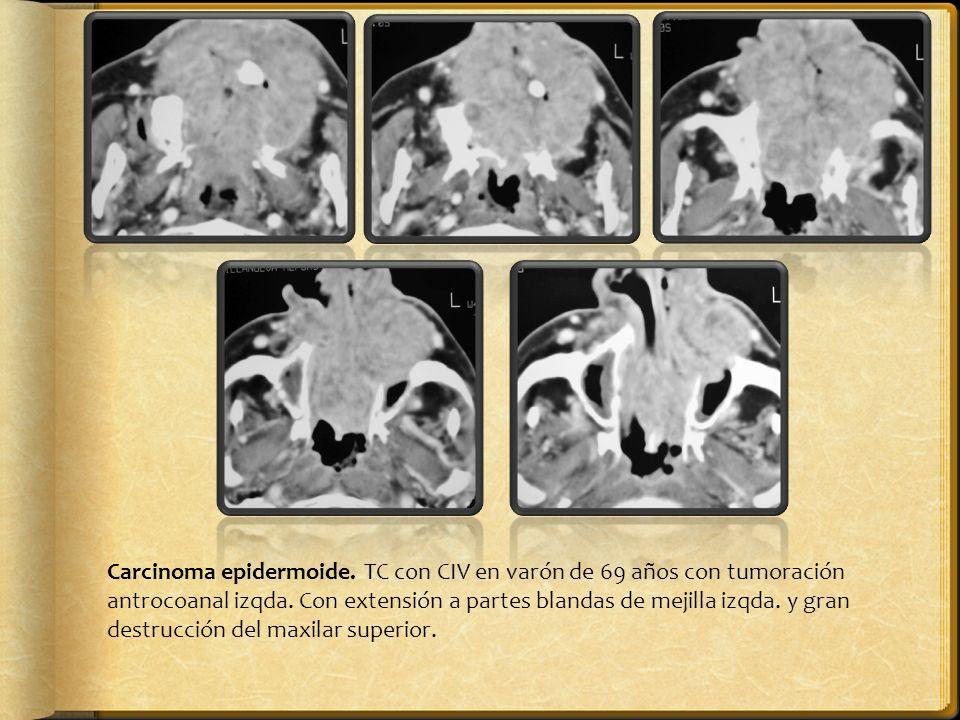 Carcinoma epidermoide. TC con CIV en varón de 69 años con tumoración antrocoanal izqda. Con extensión a partes blandas de mejilla izqda. y gran destru