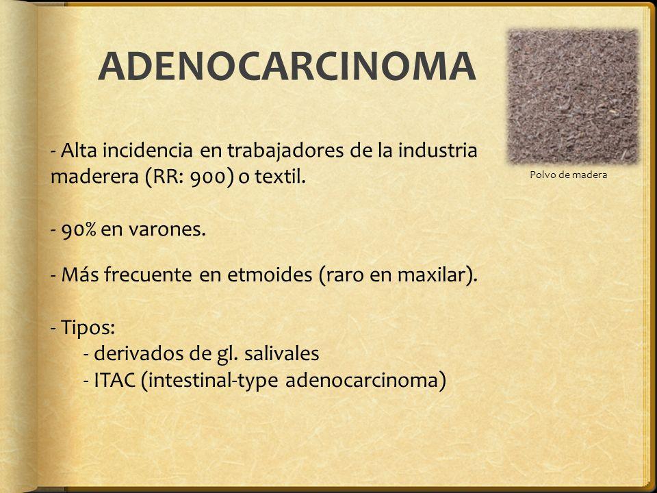 ADENOCARCINOMA Polvo de madera - Alta incidencia en trabajadores de la industria maderera (RR: 900) o textil. - 90% en varones. - Más frecuente en etm