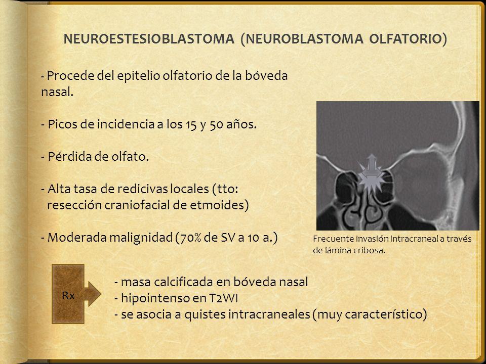NEUROESTESIOBLASTOMA (NEUROBLASTOMA OLFATORIO) - Procede del epitelio olfatorio de la bóveda nasal. - Picos de incidencia a los 15 y 50 años. - Pérdid