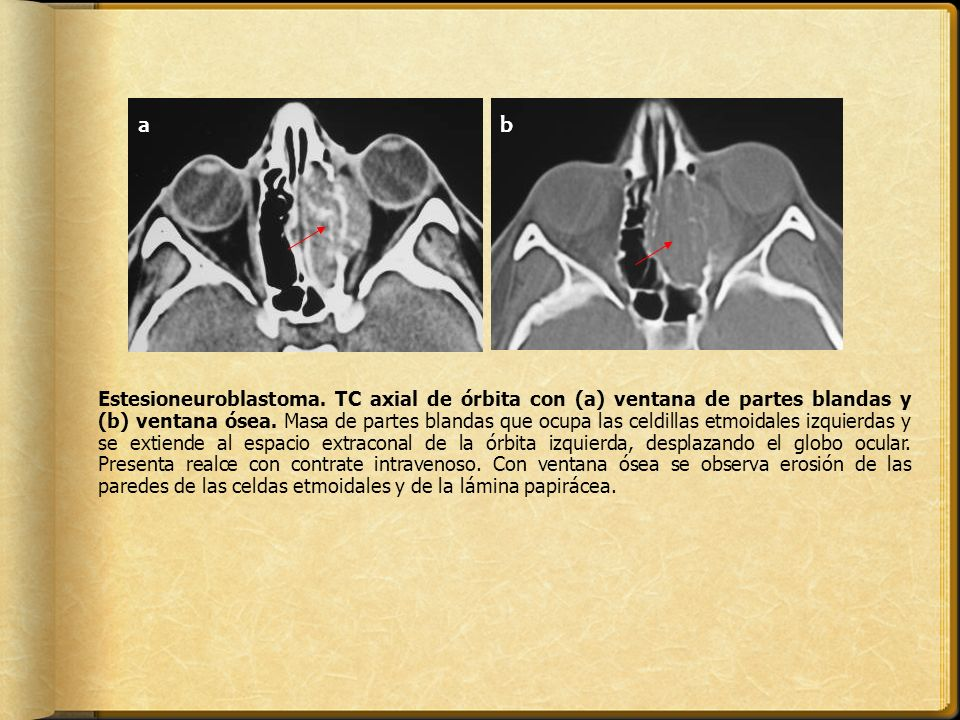 ab Estesioneuroblastoma. TC axial de órbita con (a) ventana de partes blandas y (b) ventana ósea. Masa de partes blandas que ocupa las celdillas etmoi