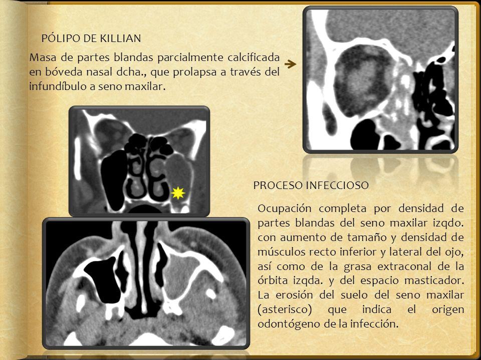 PÓLIPO DE KILLIAN Masa de partes blandas parcialmente calcificada en bóveda nasal dcha., que prolapsa a través del infundíbulo a seno maxilar. PROCESO