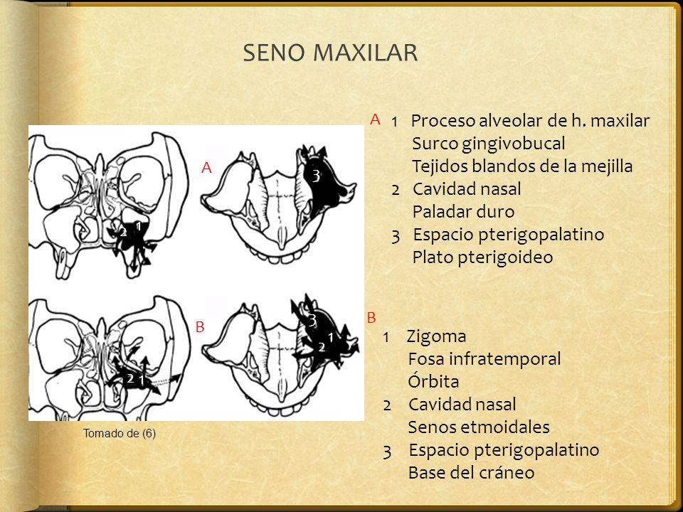 SENO MAXILAR 1 Proceso alveolar de h. maxilar Surco gingivobucal Tejidos blandos de la mejilla 2 Cavidad nasal Paladar duro 3 Espacio pterigopalatino