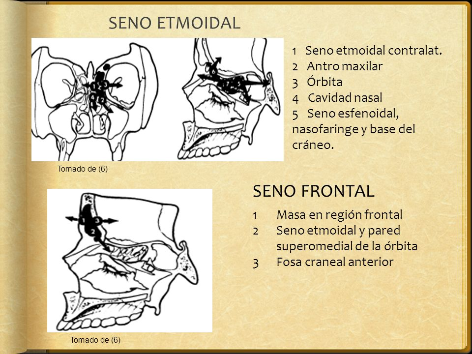 SENO ETMOIDAL 1 Seno etmoidal contralat. 2 Antro maxilar 3 Órbita 4 Cavidad nasal 5 Seno esfenoidal, nasofaringe y base del cráneo. SENO FRONTAL 1Masa