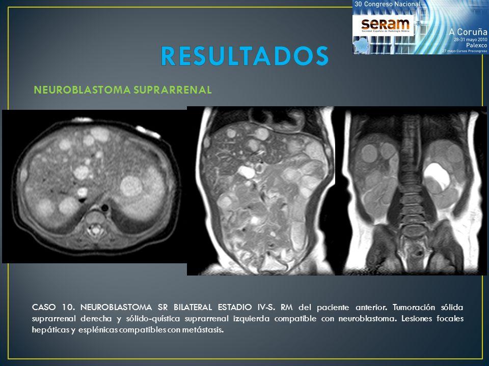 NEUROBLASTOMA SUPRARRENAL CASO 10. NEUROBLASTOMA SR BILATERAL ESTADIO IV-S. RM del paciente anterior. Tumoración sólida suprarrenal derecha y sólido-q
