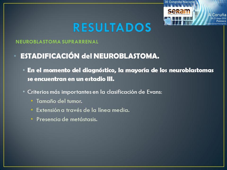 ESTADIFICACIÓN del NEUROBLASTOMA. En el momento del diagnóstico, la mayoría de los neuroblastomas se encuentran en un estadio III. Criterios más impor
