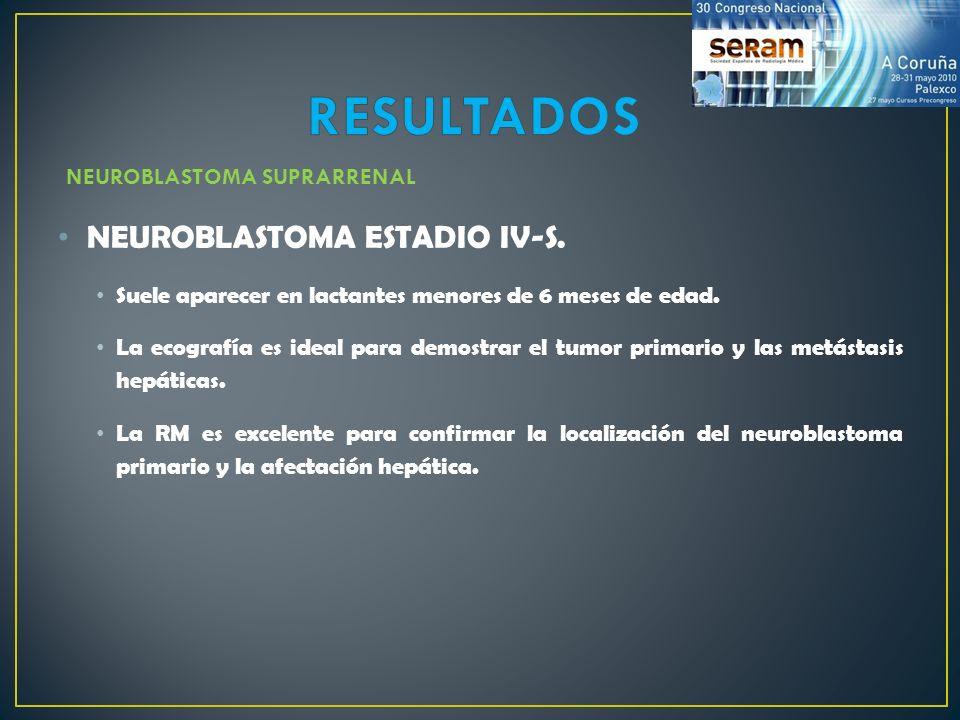 NEUROBLASTOMA ESTADIO IV-S. Suele aparecer en lactantes menores de 6 meses de edad. La ecografía es ideal para demostrar el tumor primario y las metás
