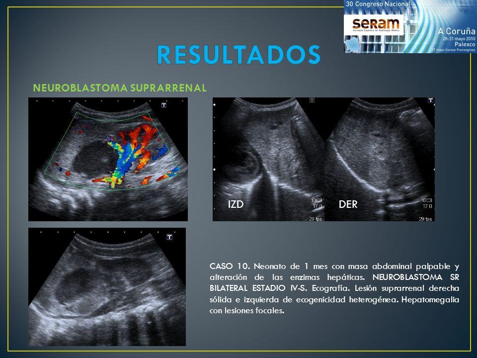 CASO 10. Neonato de 1 mes con masa abdominal palpable y alteración de las enzimas hepáticas. NEUROBLASTOMA SR BILATERAL ESTADIO IV-S. Ecografía. Lesió
