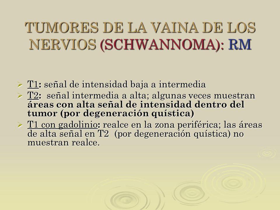 TUMORES DE LA VAINA DE LOS NERVIOS (SCHWANNOMA): RM T1 : señal de intensidad baja a intermedia T1 : señal de intensidad baja a intermedia T2 : señal i