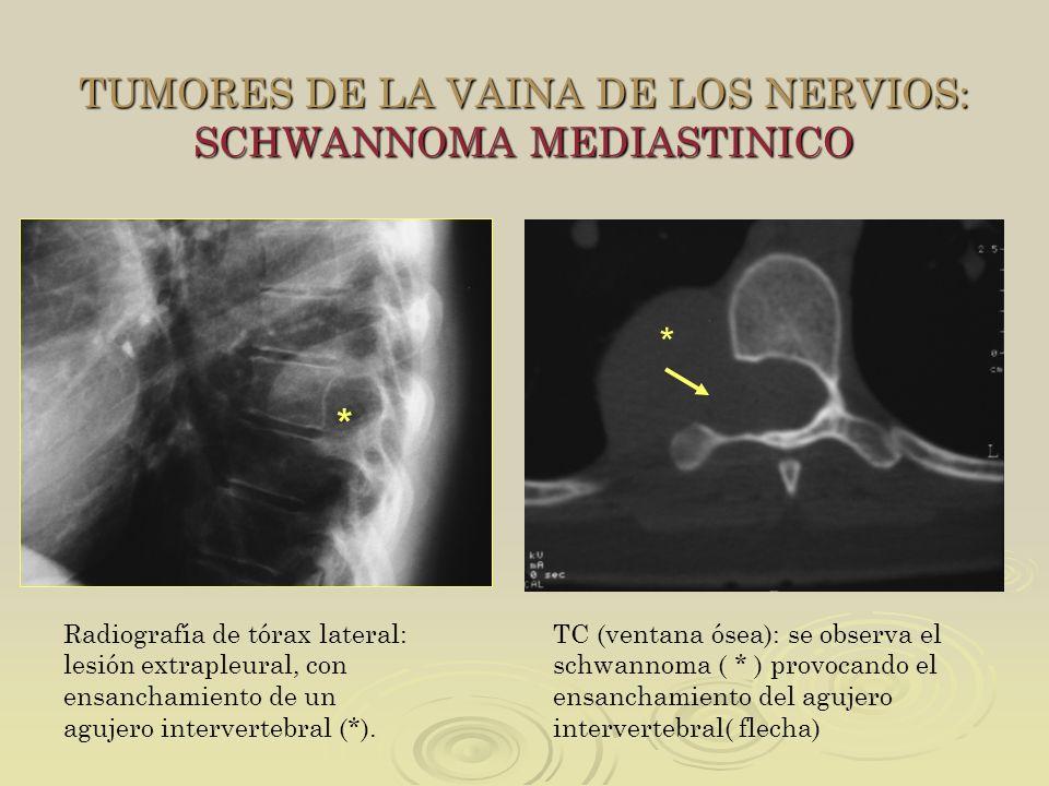 TUMORES DE LA VAINA DE LOS NERVIOS: SCHWANNOMA MEDIASTINICO TC (ventana ósea): se observa el schwannoma ( * ) provocando el ensanchamiento del agujero