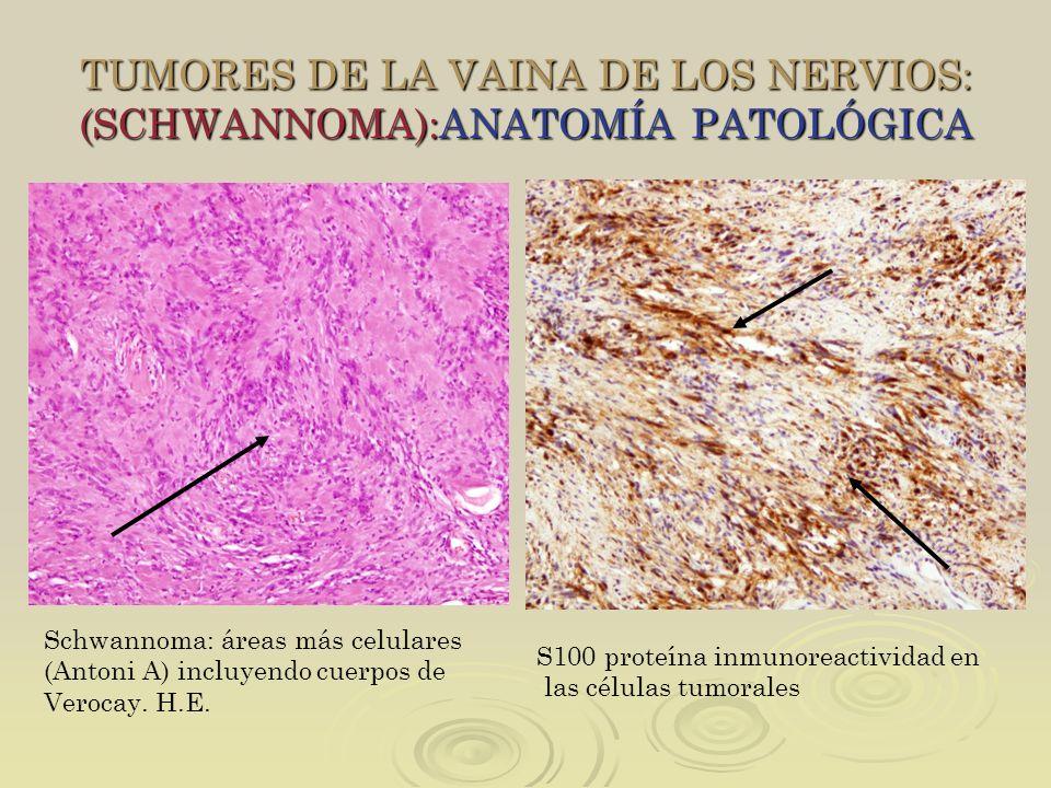 TUMORES DE LA VAINA DE LOS NERVIOS: (SCHWANNOMA):ANATOMÍA PATOLÓGICA Schwannoma: áreas más celulares (Antoni A) incluyendo cuerpos de Verocay. H.E. S1