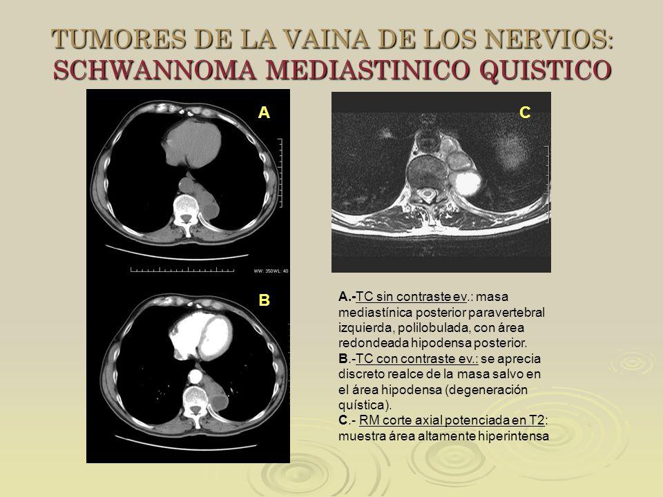 TUMORES DE LA VAINA DE LOS NERVIOS: SCHWANNOMA MEDIASTINICO QUISTICO A B A.-TC sin contraste ev.: masa mediastínica posterior paravertebral izquierda,