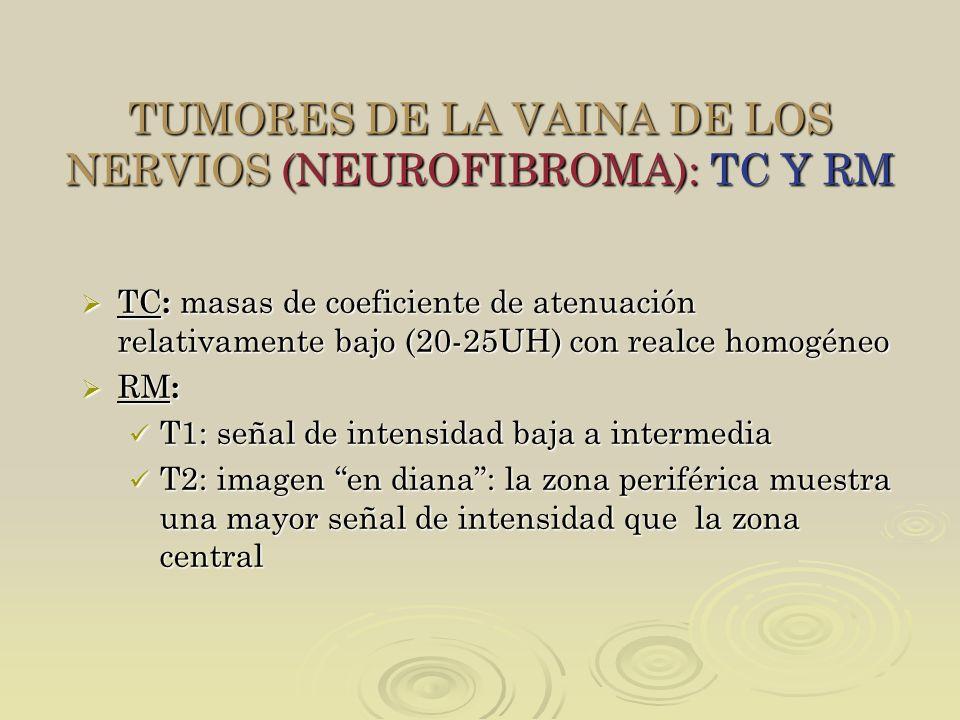 TUMORES DE LA VAINA DE LOS NERVIOS (NEUROFIBROMA): TC Y RM TC : masas de coeficiente de atenuación relativamente bajo (20-25UH) con realce homogéneo T