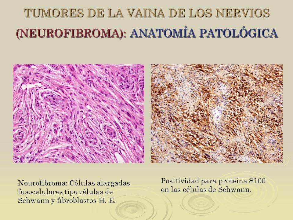 TUMORES DE LA VAINA DE LOS NERVIOS (NEUROFIBROMA): ANATOMÍA PATOLÓGICA Neurofibroma: Células alargadas fusocelulares tipo células de Schwann y fibrobl