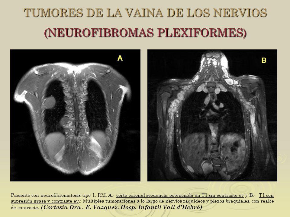 TUMORES DE LA VAINA DE LOS NERVIOS (NEUROFIBROMAS PLEXIFORMES) Paciente con neurofibromatosis tipo 1. RM: A.- corte coronal secuencia potenciada en T1