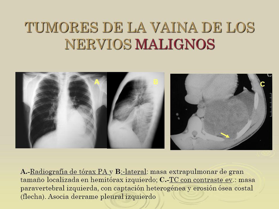 TUMORES DE LA VAINA DE LOS NERVIOS MALIGNOS A.- Radiografía de tórax PA y B :-lateral: masa extrapulmonar de gran tamaño localizada en hemitórax izqui