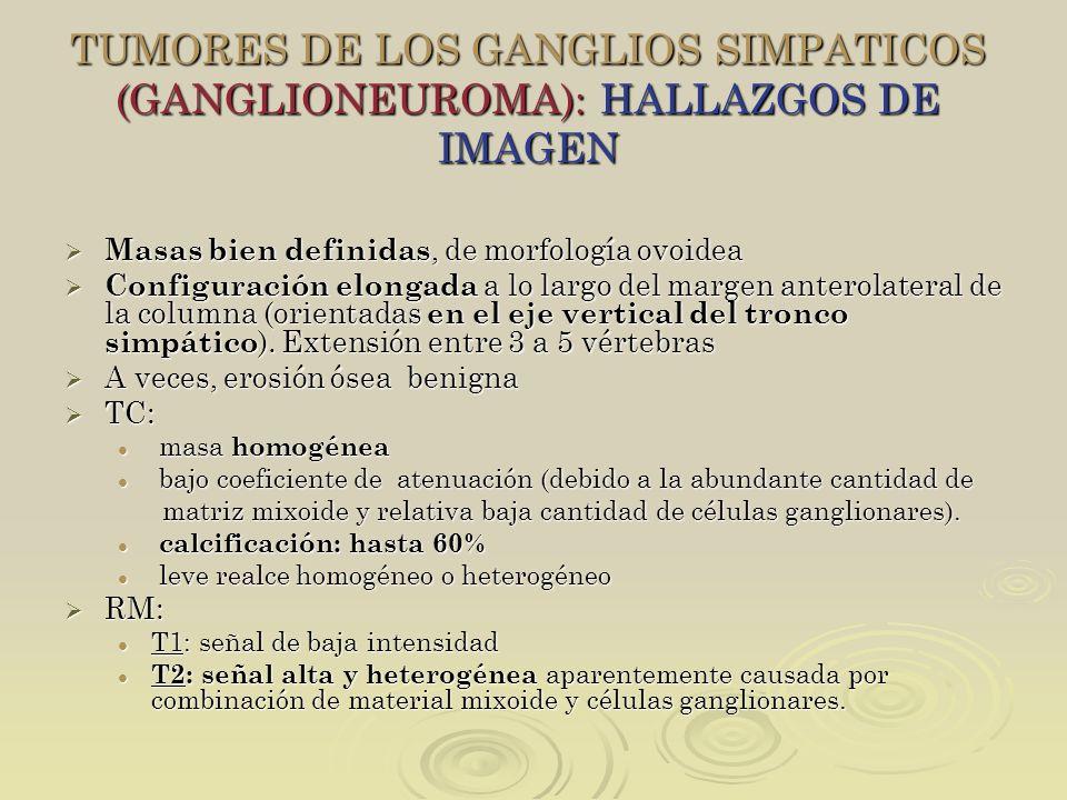 TUMORES DE LOS GANGLIOS SIMPATICOS (GANGLIONEUROMA): HALLAZGOS DE IMAGEN Masas bien definidas, de morfología ovoidea Masas bien definidas, de morfolog