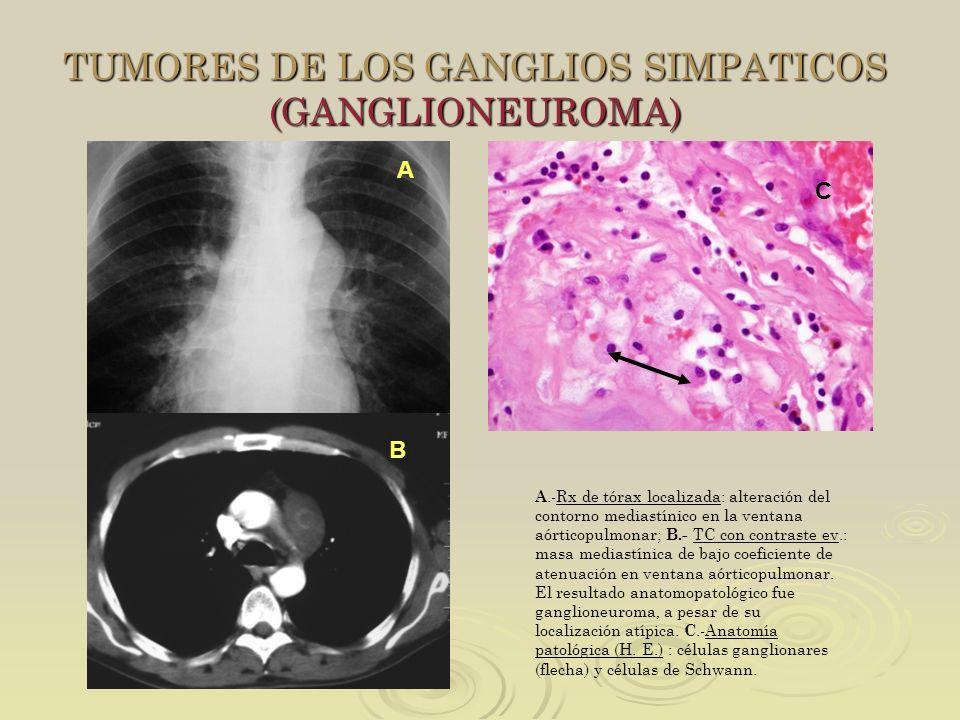 TUMORES DE LOS GANGLIOS SIMPATICOS (GANGLIONEUROMA) A B C A.-Rx de tórax localizada: alteración del contorno mediastínico en la ventana aórticopulmona