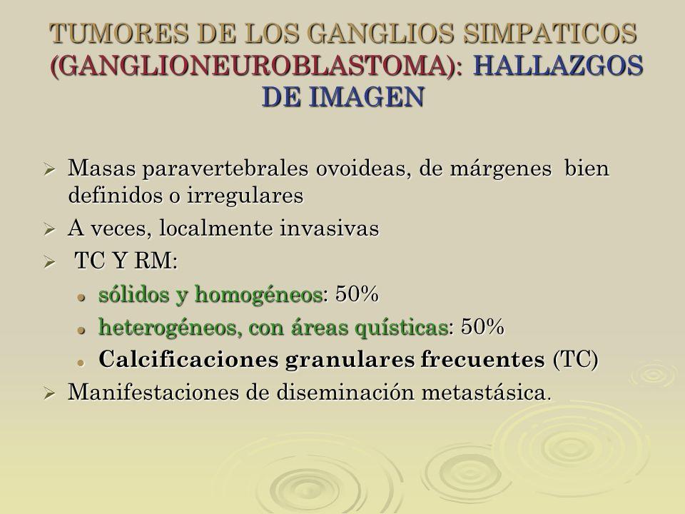 TUMORES DE LOS GANGLIOS SIMPATICOS (GANGLIONEUROBLASTOMA): HALLAZGOS DE IMAGEN Masas paravertebrales ovoideas, de márgenes bien definidos o irregulare