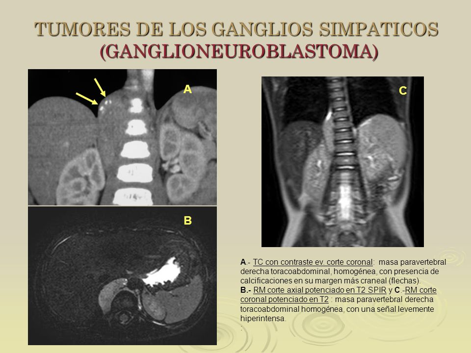 TUMORES DE LOS GANGLIOS SIMPATICOS (GANGLIONEUROBLASTOMA) BC A.- TC con contraste ev. corte coronal: masa paravertebral derecha toracoabdominal, homog