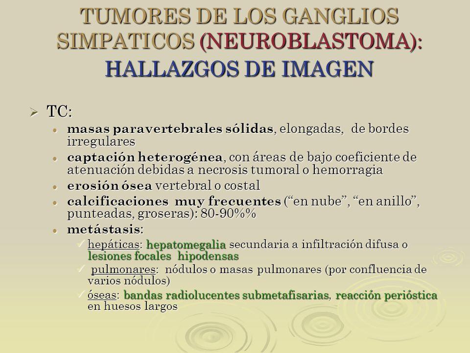 TUMORES DE LOS GANGLIOS SIMPATICOS (NEUROBLASTOMA): HALLAZGOS DE IMAGEN TC: TC: masas paravertebrales sólidas, elongadas, de bordes irregulares masas