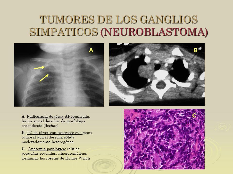 TUMORES DE LOS GANGLIOS SIMPATICOS (NEUROBLASTOMA) A.-Radiografía de tórax AP localizada: lesión apical derecha de morfología redondeada.(flechas) B.-